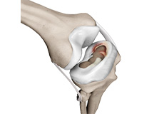 Meniscal Injuries